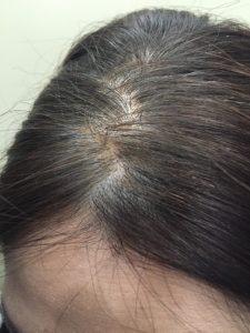 after 髪も増えた感じ。 シャンプーすると綺麗に落ちるので、ムラにはなりません!