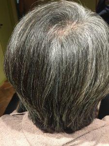 4ヶ月後… 頭皮の色も赤みが減ってボリュームもでました!!!